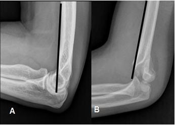 Resultado de imagen para fractura supracondilea humeral niños