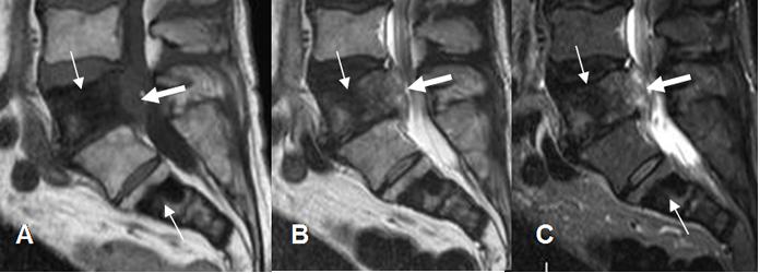 metastasis vertebrales por cancer de prostata